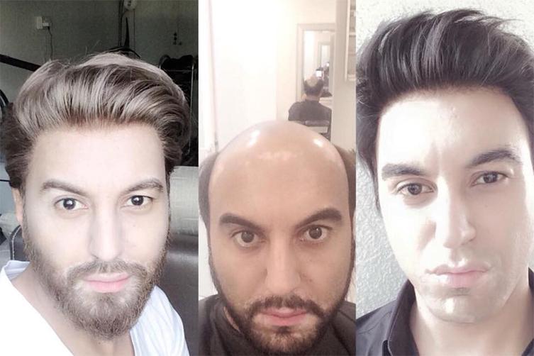 Hair-fixing-World-Wide-Hair-Hub-Bangalore-Dubai