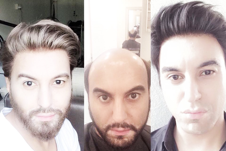 non-surgical-hair-replacement-in-Dubai-at-World-Wide-Hair-Hub