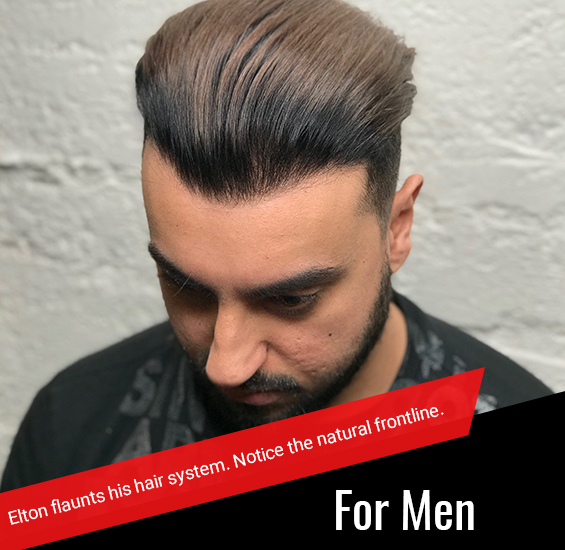 Beat Baldness with WWHH hair systems