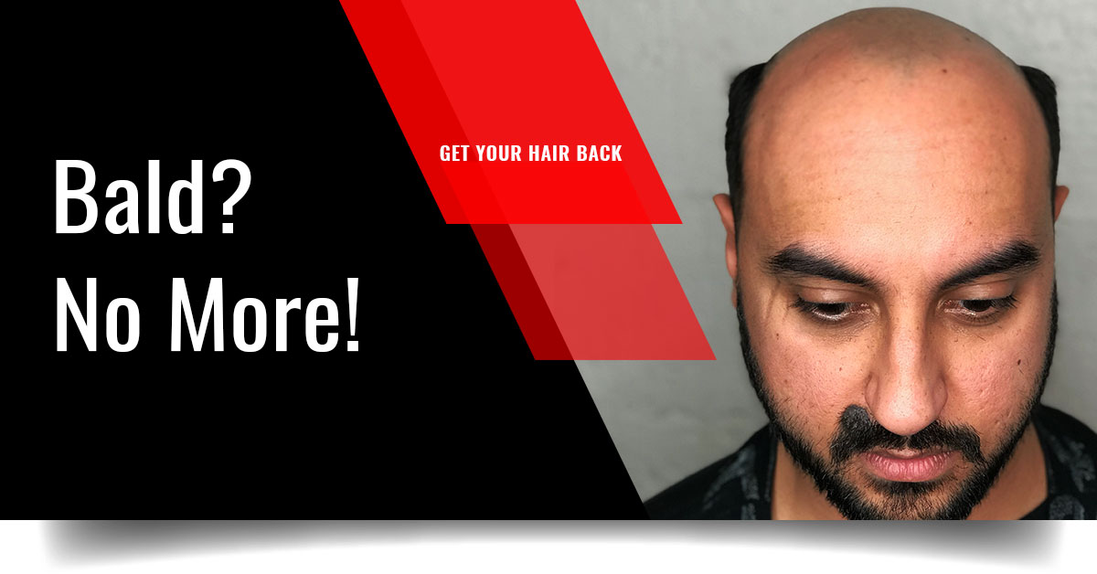 World's Best Hair Fixing and Hair Replacement using Hair Systems