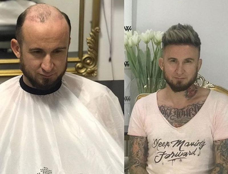 Celebrity-Makeup-Artist-Dmitry-Tonkovid--Hair-Makeover-by-World-Wide-Hair-Hub-Dubai